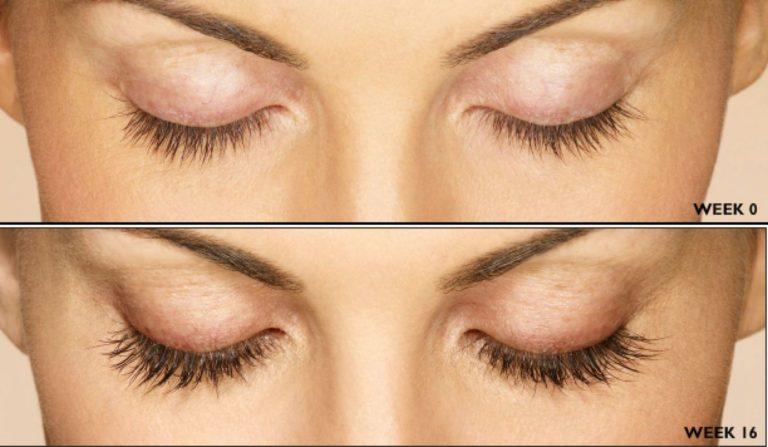 Latisse® Eyelash Enhancement - BOMSLJOFS